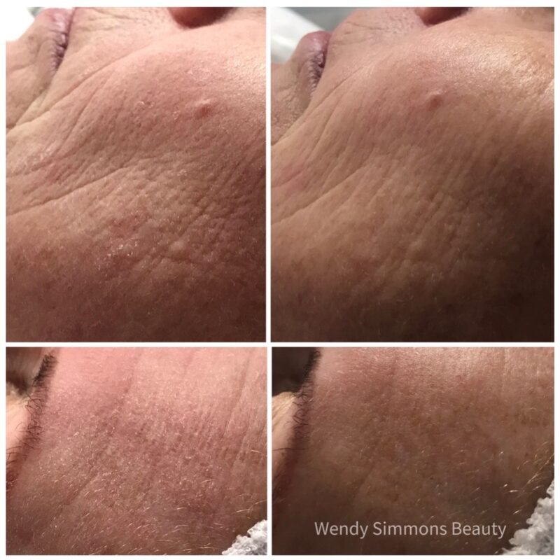 Dermafusion Intensive Mask Therapy after one treatment including Microdermabrasion