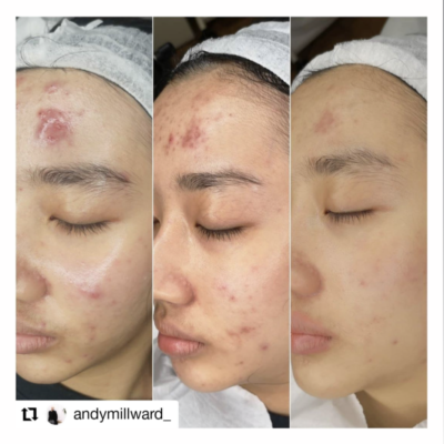 Acne Treatment with LED  Light Therapy courtesy of Dermalux